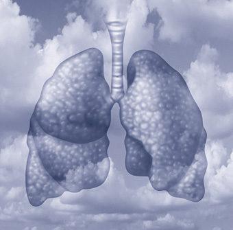longen lucht wolken
